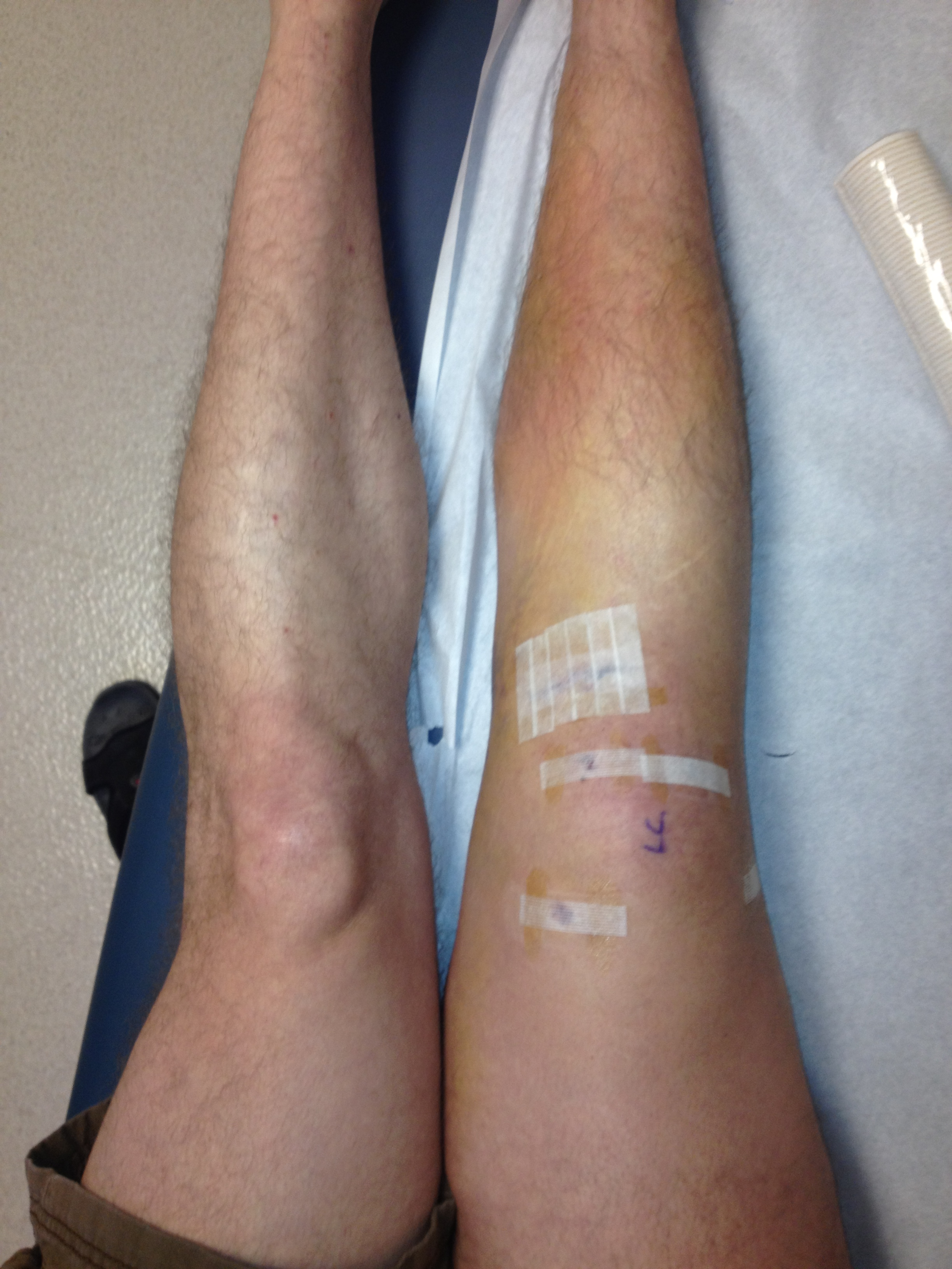 ACLHell | The Agoknee of ACL Reconstruction